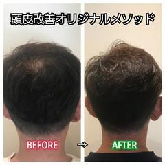 ショート 育毛 ナチュラル 頭皮改善 ヘアスタイルや髪型の写真・画像
