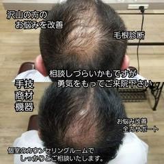 頭皮改善 薄毛改善 ナチュラル 育毛 ヘアスタイルや髪型の写真・画像