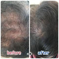 薄毛改善 頭皮改善 ショート ナチュラル ヘアスタイルや髪型の写真・画像