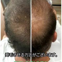 ナチュラル 薄毛改善 髪の病院 育毛 ヘアスタイルや髪型の写真・画像