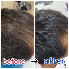 薄毛改善 頭皮改善 ショート 頭皮ケア ヘアスタイルや髪型の写真・画像