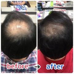 ベリーショート 薄毛改善 頭皮ケア ショート ヘアスタイルや髪型の写真・画像
