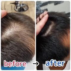 頭皮ケア 名古屋市守山区 頭皮改善 薄毛改善 ヘアスタイルや髪型の写真・画像