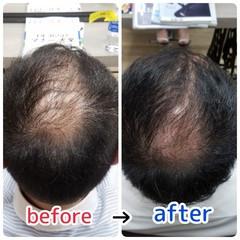 名古屋市守山区 頭皮改善 髪の病院 薄毛改善 ヘアスタイルや髪型の写真・画像