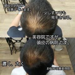 育毛 頭皮改善 髪の病院 ショート ヘアスタイルや髪型の写真・画像