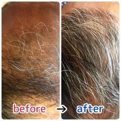 頭皮改善 頭皮ケア ナチュラル 髪の病院 ヘアスタイルや髪型の写真・画像